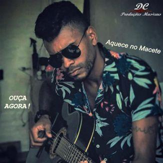 Foto da capa: XéBalada - Aquece no Macete -#EquipeDC