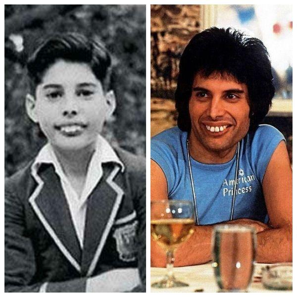 Freddie Mercury tinha uma condição chamada Dentes Supranumerários