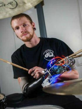 Conheça a inspiradora história de Jason Barnes, o baterista biônico